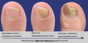 Пожелтение ногтя