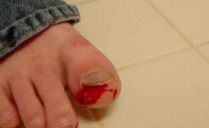 Травмированный ноготь