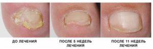 Ороговевший ноготь на ноге лечение