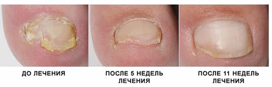 Лазерное лечение грибка ногтей в нижнем новгороде