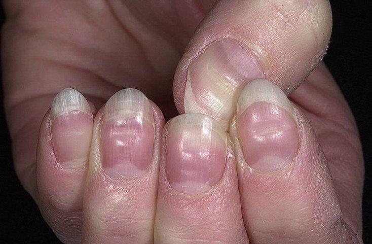 Изменение ногтя большого пальца фото