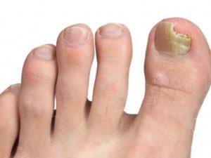 Слезают ногти на ногах причины