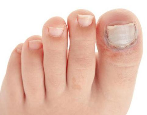 Отслаивание ногтей на ногах