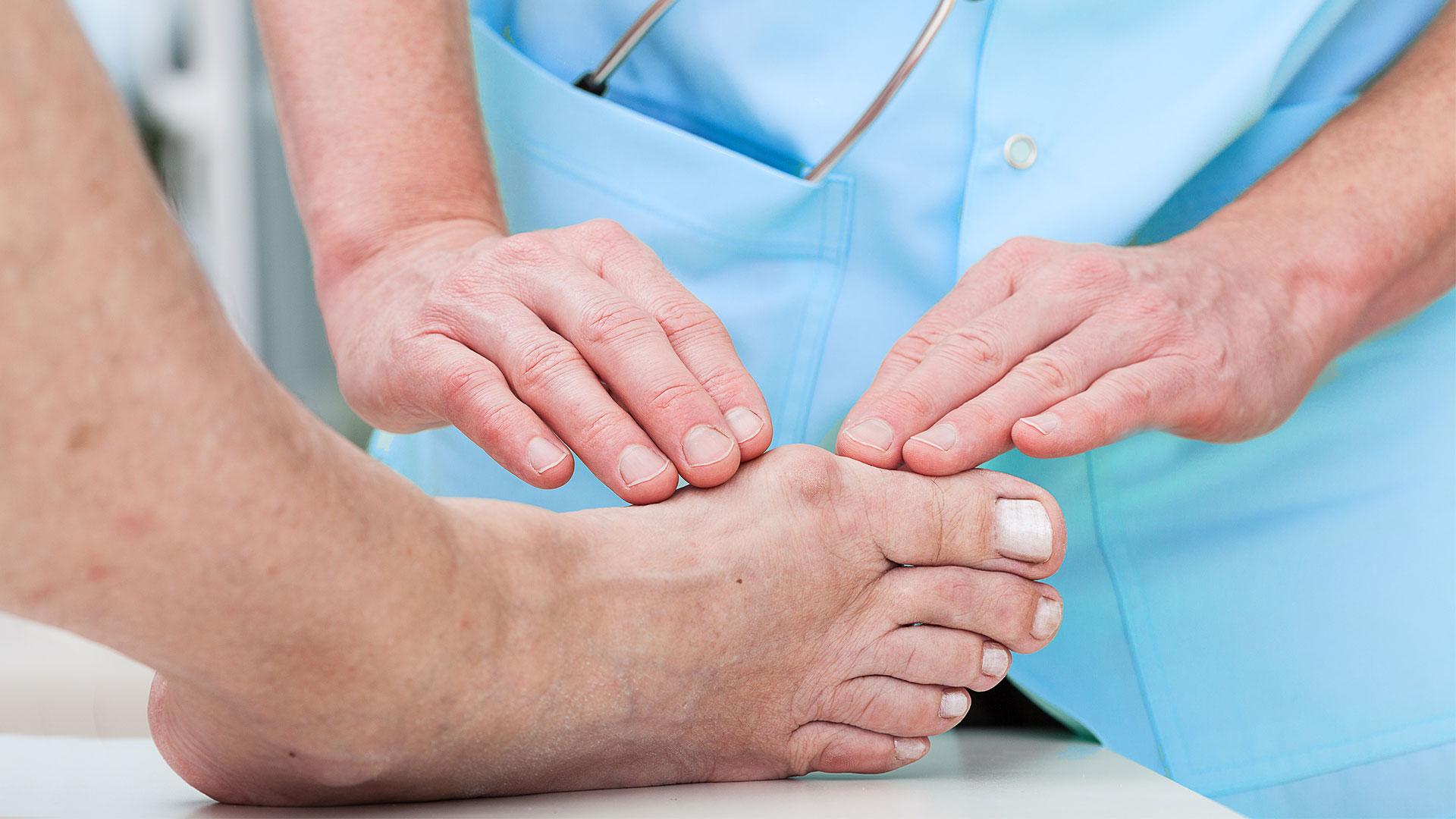 Что делать если палец на ноге распух и покраснел без причины