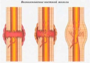 Как избавиться от костной мозоли после перелома? Костная мозоль