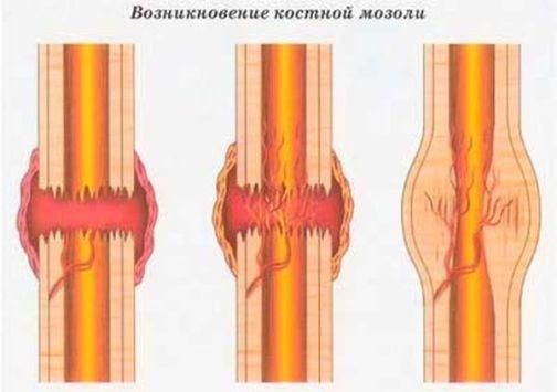 костная мозоль после перелома фото