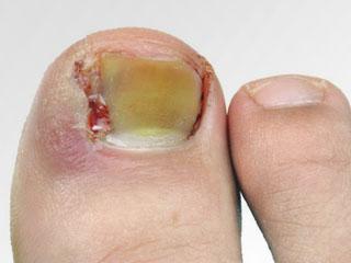 Панариций на пальце ноги лечение фото