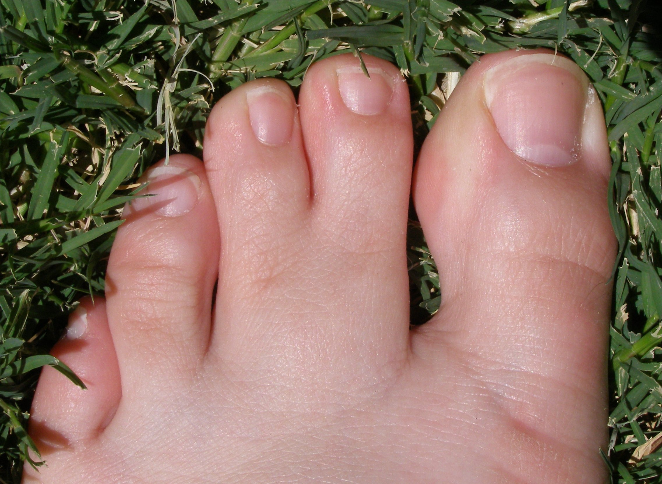 Сросшиеся пальцы на ногах что означает