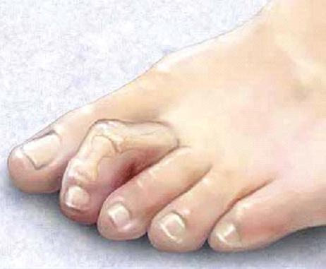 Молоткообразные пальцы стопы - причины, симптомы, диагностика и лечение