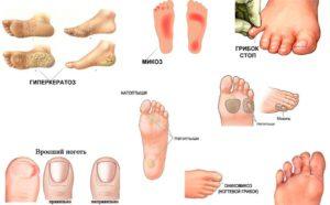 Утолщение ногтевой пластины на ногах лечение