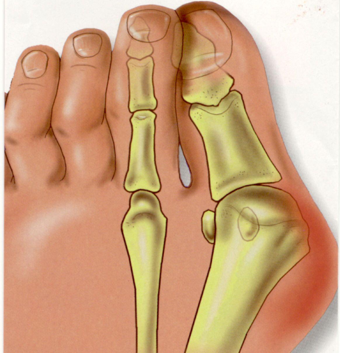 Как убрать косточку на ноге большого пальца в домашних условиях отзывы