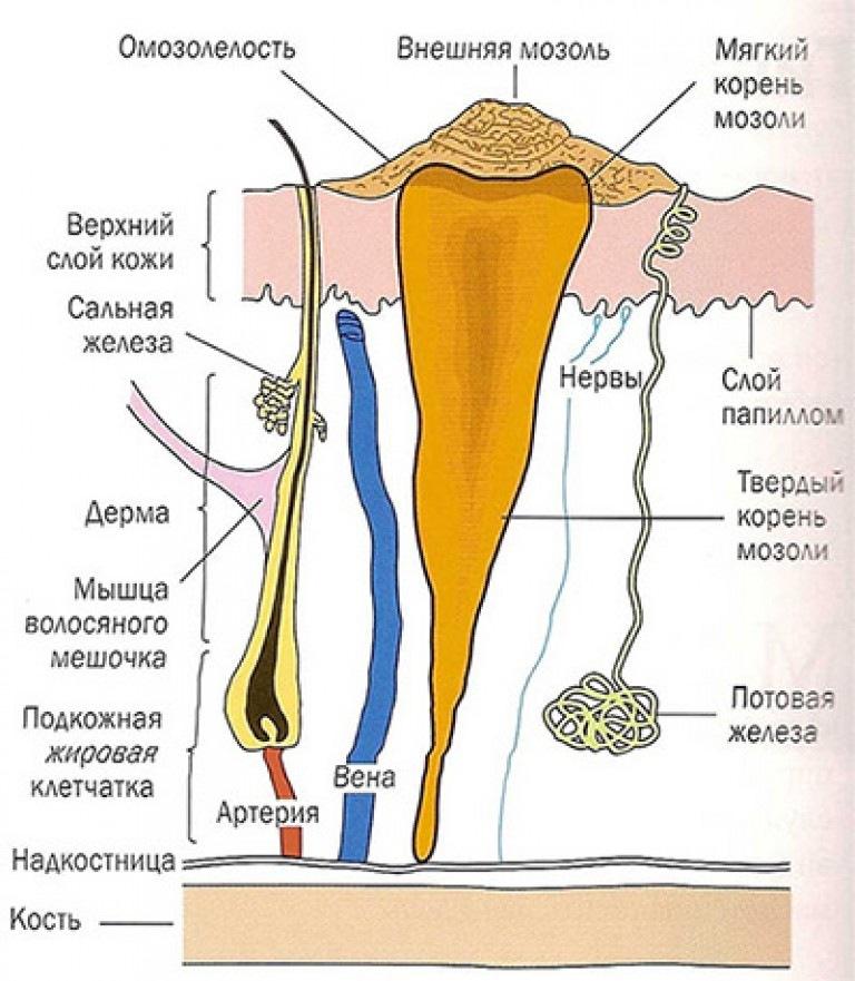 мозоли на подошве со стержнем фото