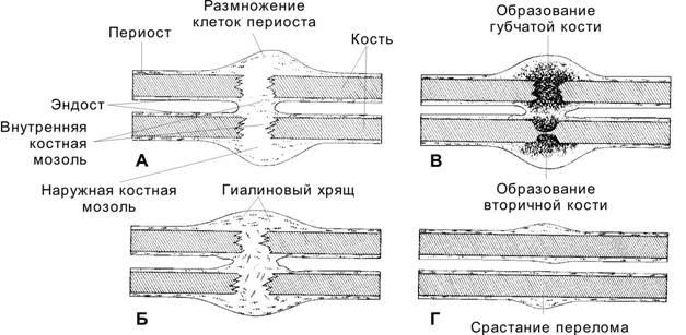Образование костной мозоли после перелома: лечение и удаление