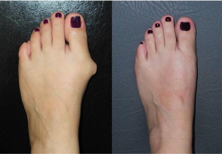 Почему образуется и болит косточка на ноге