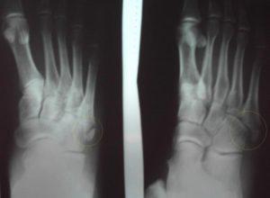 Рентгеновский снимок перелома со смещением