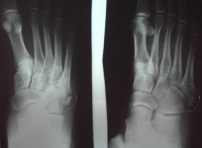 перелом основания 1 плюсневой кости