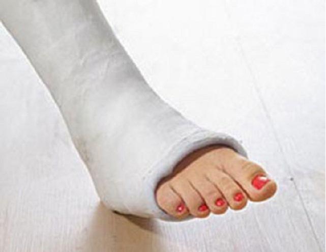 Когда можно наступать на ногу после перелома пятки без смещения