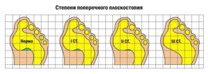 Что такое поперечное плоскостопие и как его лечить