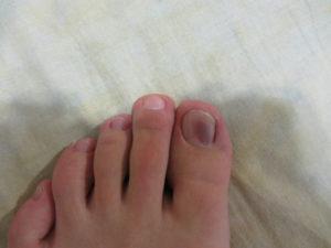 Синее пятно на большом пальце ноги