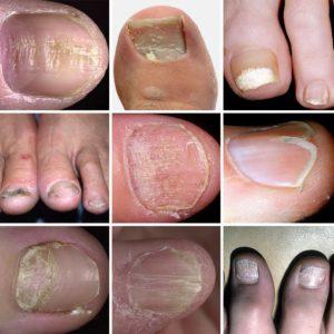 Видоизменение ногтевой пластины