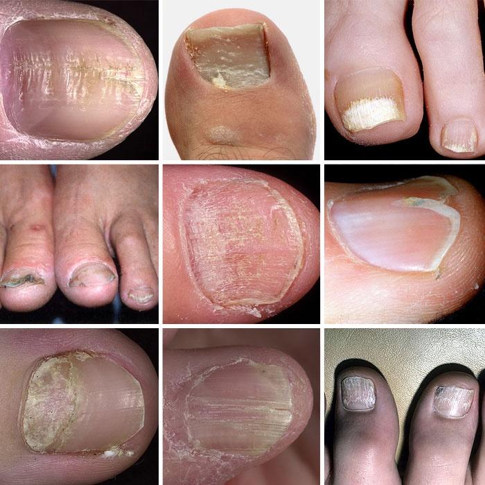 Жидкость под ногтем ноги