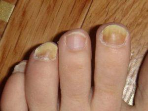 Желтые ногти на пальцах ног