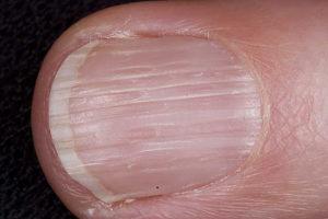 Поперечные борозды на ногтевой пластине