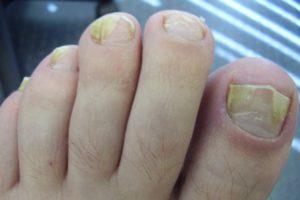 Расслоение ногтей на пальцах ног