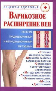Варикозное расширение вен. Лечение традиционными и нетрадиционными методами