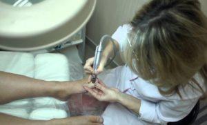 Аппаратное лечение ногтей