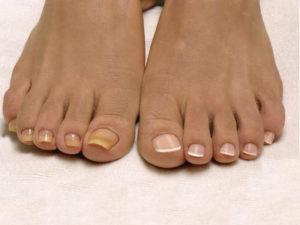 Больные и здоровые ногти на ногах