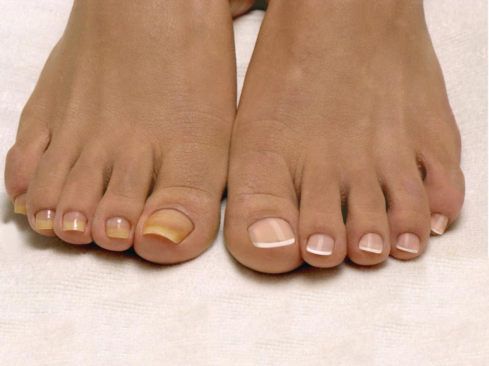 Ногти на ногах здоровые