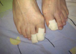 Пластырь на пальцах ног