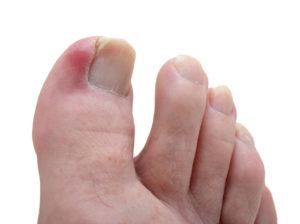 Воспаление на пальце из-за вросшего ногтя