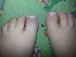 Мазь на ногтях пальцев ног