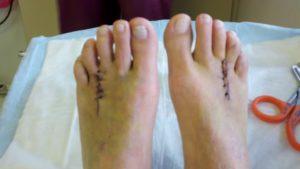 Швы после операции