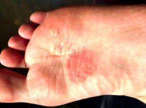 Красное пятно на ступне