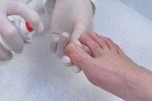 Обработка пальцев ноги спреем