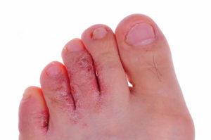 Пятна на пальцах и шелушение кожи