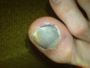 Синяк под ногтем большого пальца