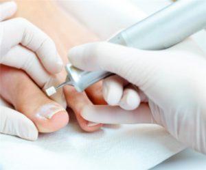 Процедура аппаратного педикюра