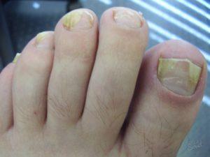 Расслоение ногтевой пластины