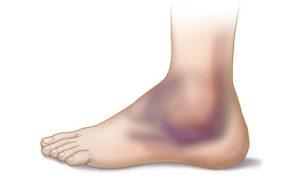 Область верхней части стопы, которая часто бывает травмирована