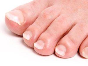 Побелели ногти на пальцах ног