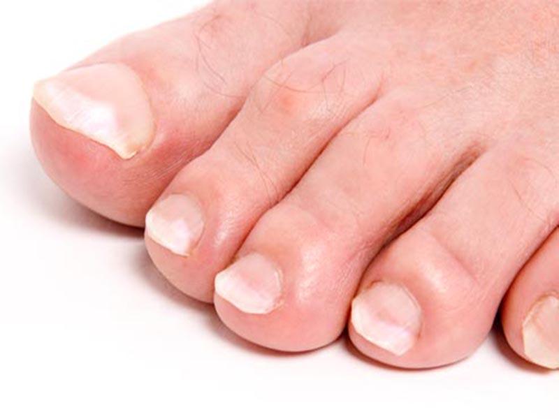 белые пятна на ногтях ног причины фото