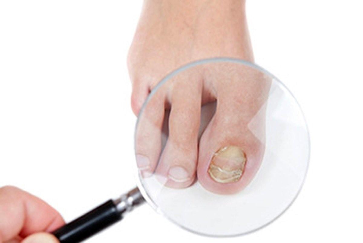 Чем лечить грибок на ногтях рук аптечные препараты