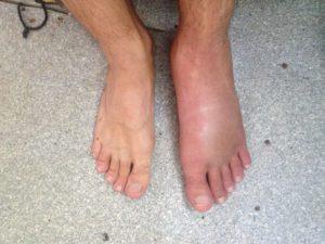 Отек стопы может быть симптомом серьезного заболевания