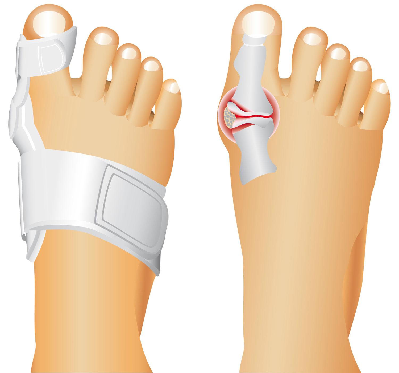 Бурсит большого пальца стопы – лечение, симптомы и причины