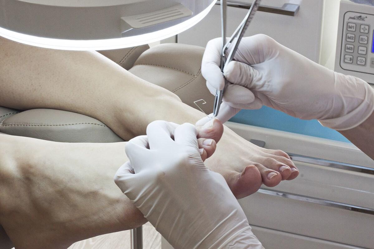 Операция вросшего ногтя 45