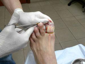 Удаление края ногтевой пластины